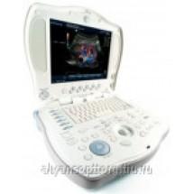 Портативный цветной ультразвуковой сканер GE Logiq Book XP